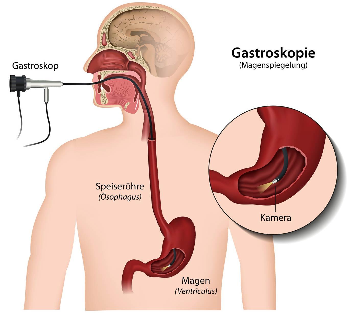 Gastroskopie, Magenspiegelung. Foto: (c) bilderzwerg - fotolia.com